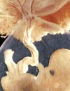 embrione.jpg